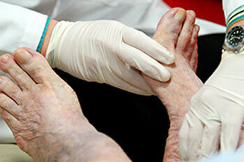 Geriatric foot care treatment in Port St. Lucie, FL 34952